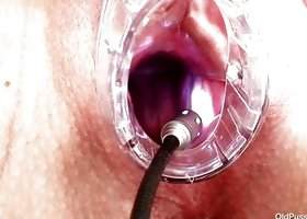 Old Slut At The Gynecologist Takes Her Treatment